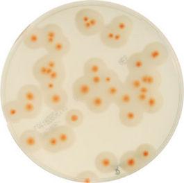 Medios cromogénicos para el recuento de indicadores de calidad