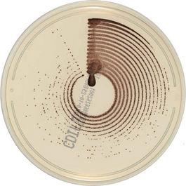Medios de cultivo cromogénicos
